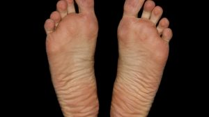 Hyaluron Unterspritzung bei schmerzenden Fußsohlen