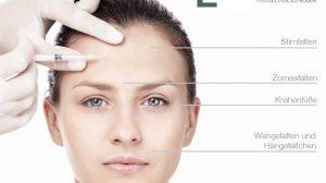 Bereiche für Botox Faltenbehandlung