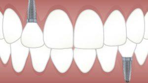 Was sind Zahnimplantate?